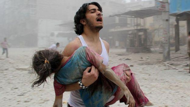 ilustrasi foto korban perang Suriah. (Dokumentasi Al Jazeera)
