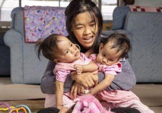 Kembar siam asal Bhutan Nima dan Dawa bersama ibu mereka, Bhumchu Zangmo, menjelang menjalani operasi di Melbourne, Australia. (Foto: EPA/BBC News)